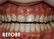 excess-gum2-beforebad-bites