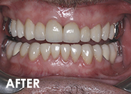 fullmouth-rehab-after
