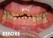 fullmouth-rehab-before