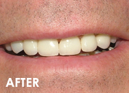 fullmouth2-rehab-after