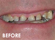 fullmouth2-rehab-before