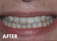 Invisalign-case1-after