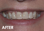Invisalign-case2-after