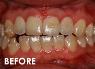 Invisalign-case1-before